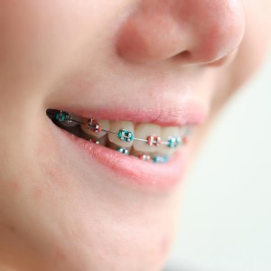 Smile with Coloured Braces