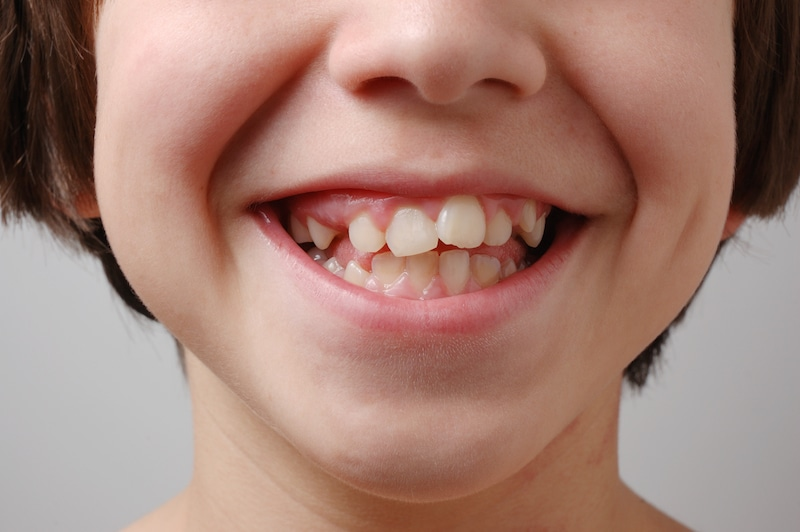 Misaligned teeth and dating
