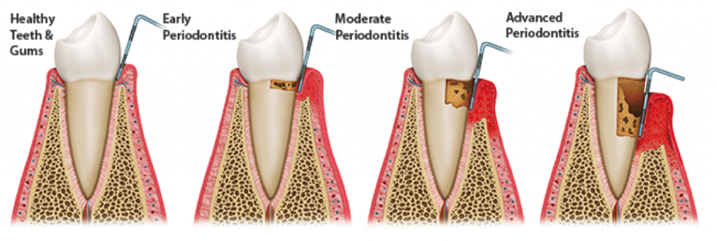 periodontitis-stages