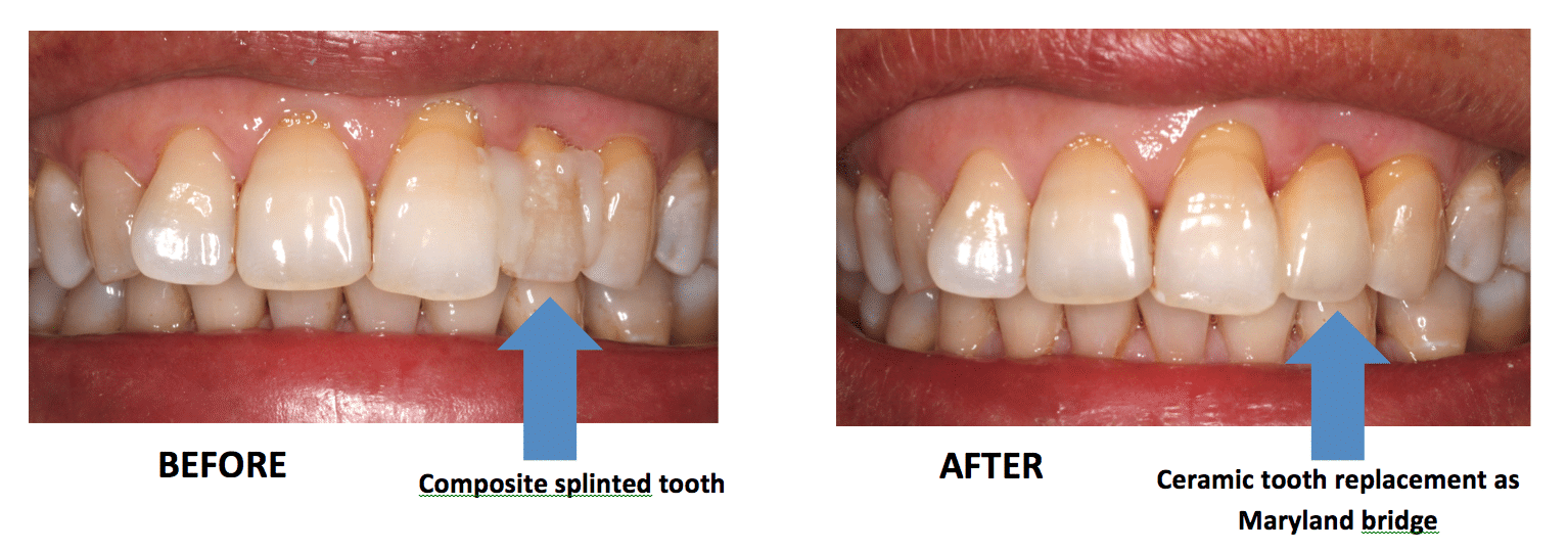Maryland Bridge Before And After Melbourne Dentist Case