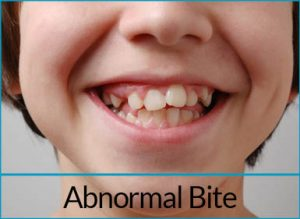 orthodontics-problems-abnormal-bite