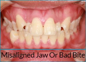 orthodontics-problems-bad-bite