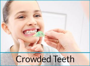 orthodontics-problems-crowded-teeth