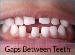orthodontics-problems-gaps-between-teeth