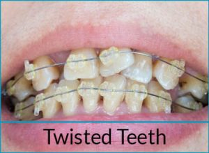orthodontics-problems-twisted-teeth
