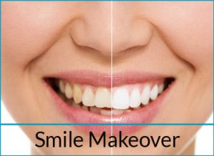 cosmetic-dentistry-solutions-smile-makeover