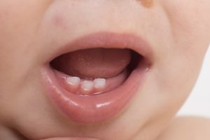what to expect when baby teeth erupt