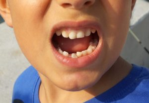 dental trauma in children