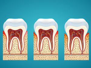 How to Avoid the Top 5 Causes of Gum Disease