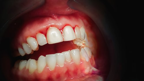 top-causes-bleeding-gums