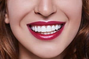 Dental Veneers and the Issues They Fix