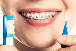 oral health braces