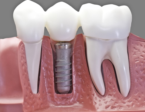 restoration procedure for dental implants