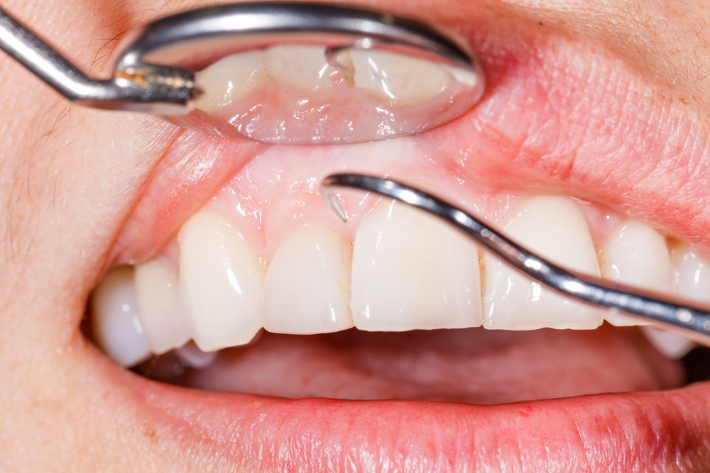 swollen gums causes symptoms treatment