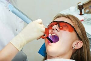 how can fissure sealants prevent decay